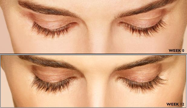 Latisse cost, Latisse use, longer eyelashes