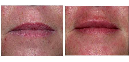 lip wrinkles